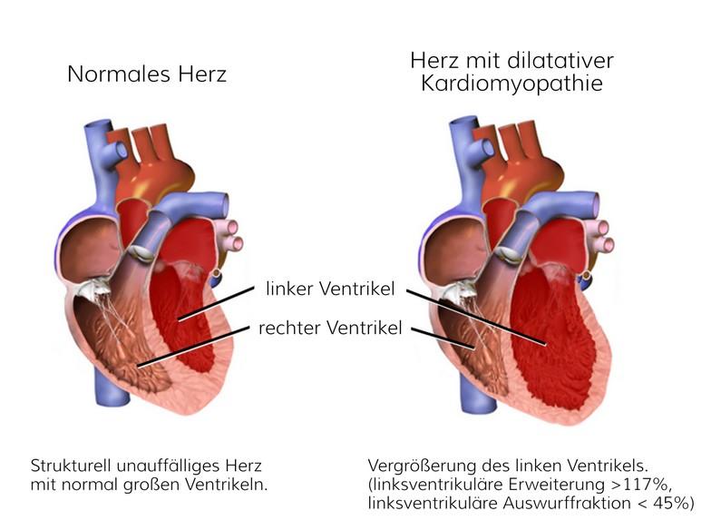 Grafische Darstellung DCM dilatative Kardiomyopathie